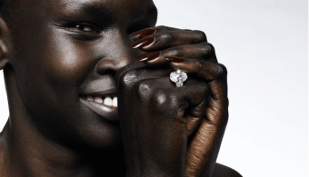 Peau noire: taches, acné et vergetures, entretien avec le dermatologue Franck Yedomon