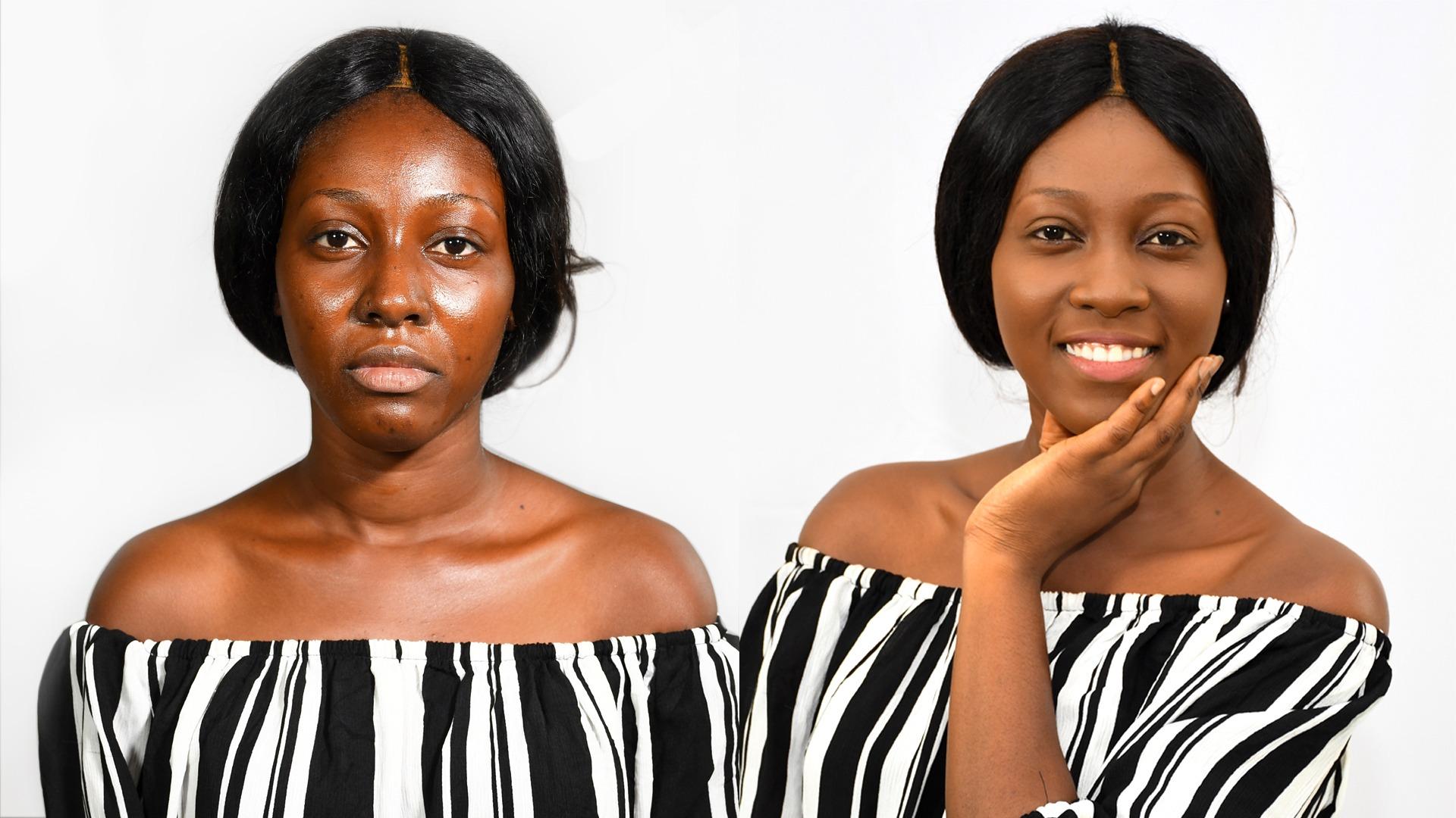 5 produits r ellement efficaces pour traiter votre peau. Black Bedroom Furniture Sets. Home Design Ideas