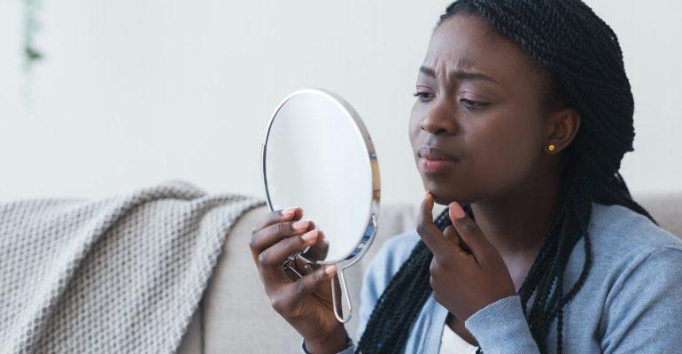 Peau noire : 5 points essentiels à connaître sur votre acné